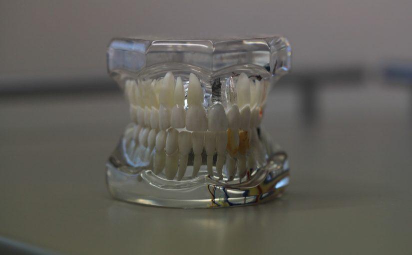 Zła dieta odżywiania się to większe niedobory w zębach a również ich utratę